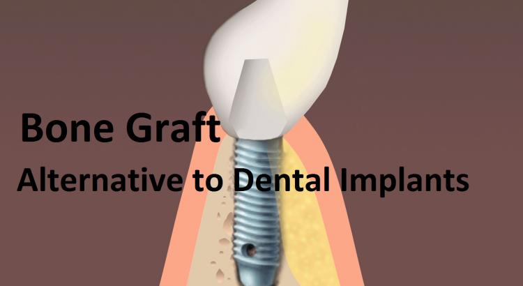 Bone Graft-Alternative Dental Implant