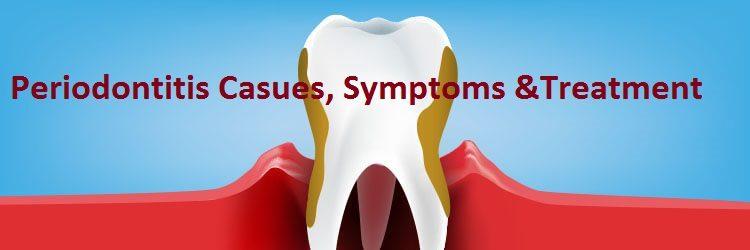 Periodontitis casues symptoms and treatment